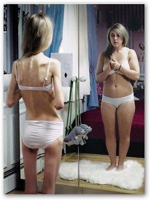 Anoressia: eccesso di grasso nel midollo osseo, rischio osteoporosi