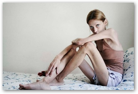 Talent scout alla ricerca di modelle in una clinica per ragazze anoressiche