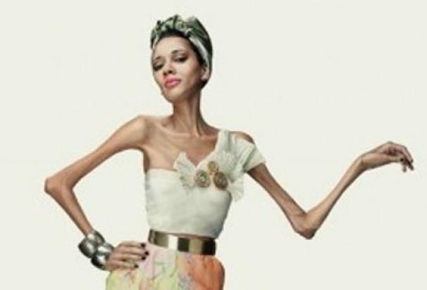 """""""Non sei un disegno"""", la nuova campagna contro l'anoressia solleva polemiche"""