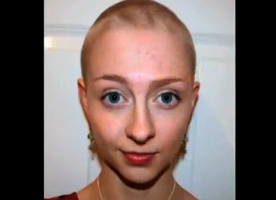 Rebecca calva a 16 anni, dai 12 ha iniziato a strapparsi i capelli (VIDEO)