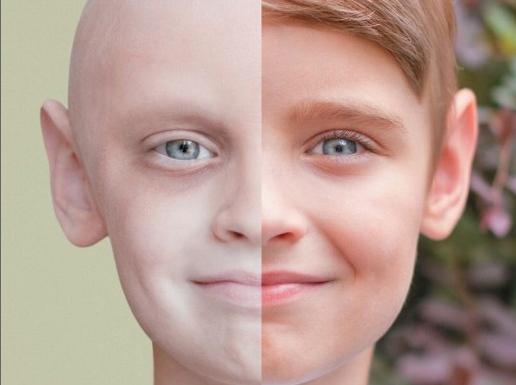 Dal cancro si può guarire: la speranza nel sorriso del piccolo Noah (FOTO)
