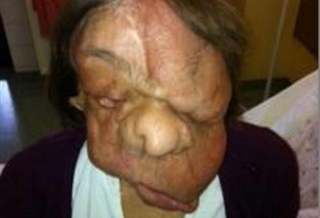 Sfigurata da un tumore, ora ha un nuovo volto grazie ad un complicato trapianto