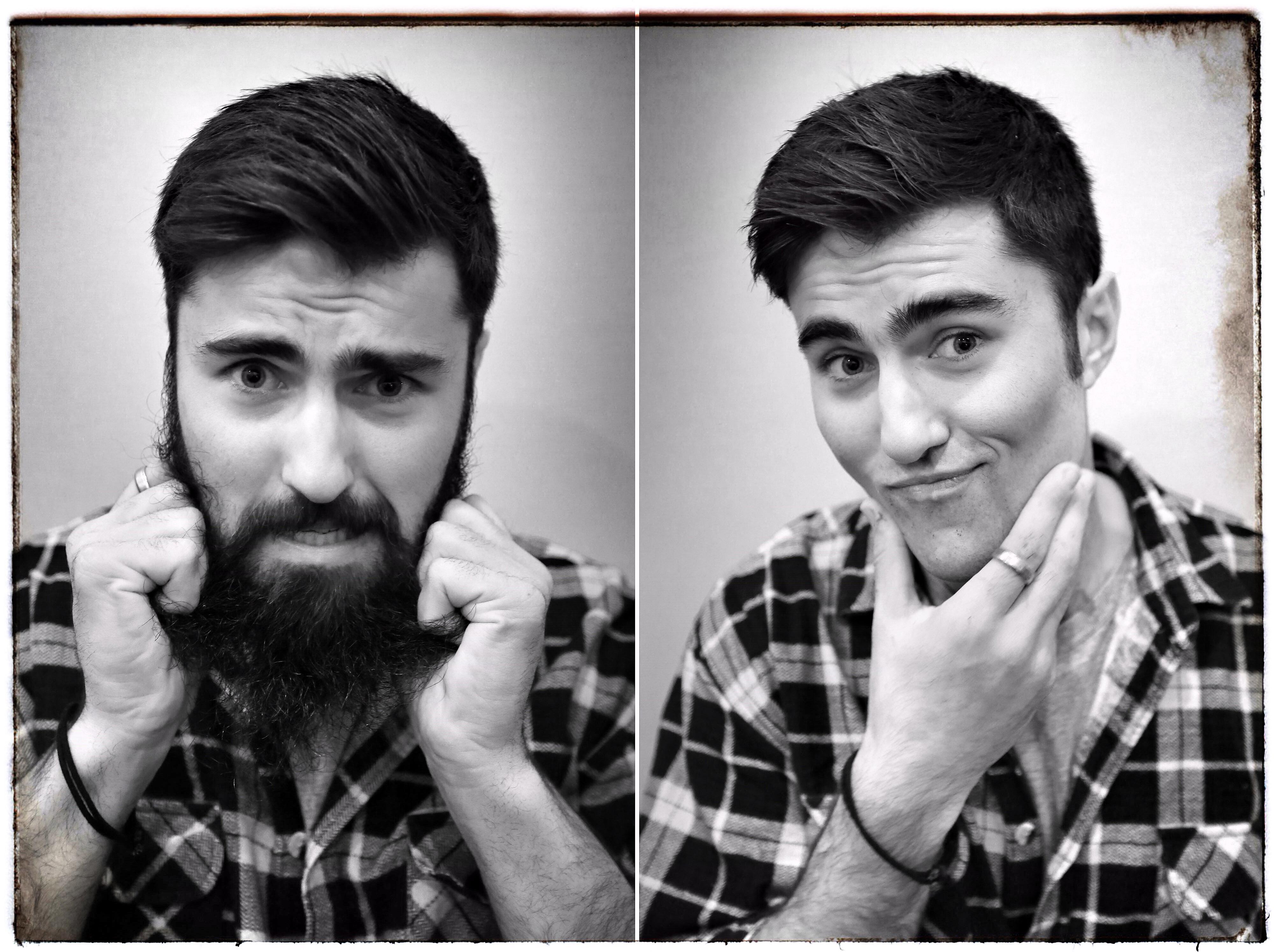 Un trapianto di barba da 10mila euro. Ecco cosa si fa per essere un hipster