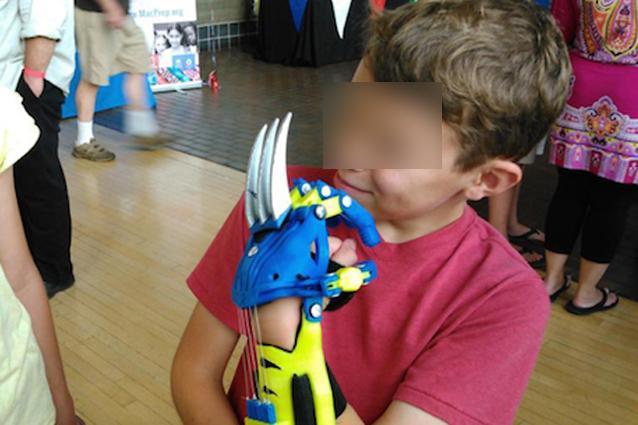 Bimbo senza dita riceve una protesi da supereroe ispirata a Wolverine