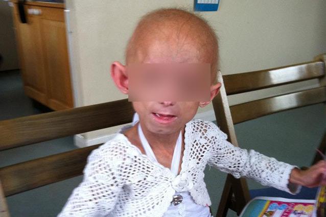 Affetta da una malattia rara, viene umiliata a scuola