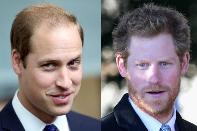 Il Principe Harry contrasta la calvizie di famiglia con gli asparagi