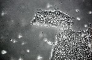 Colonia di cellule staminali embrionali umane
