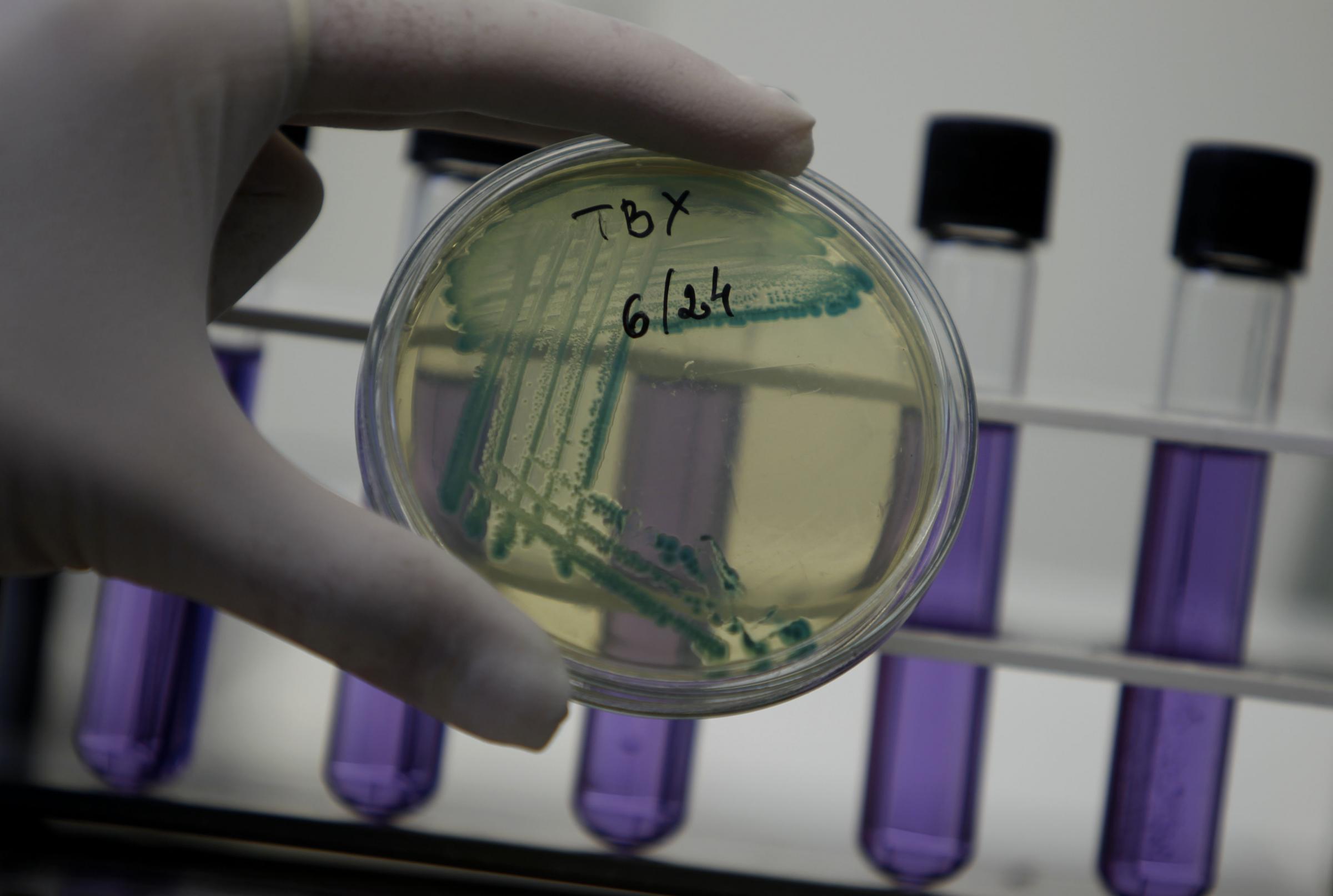 La minaccia dei batteri resistenti agli antibiotici