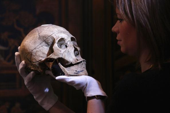 Protesi del 75% al cranio: il 3D potrebbe abbattere i costi della chirurgia