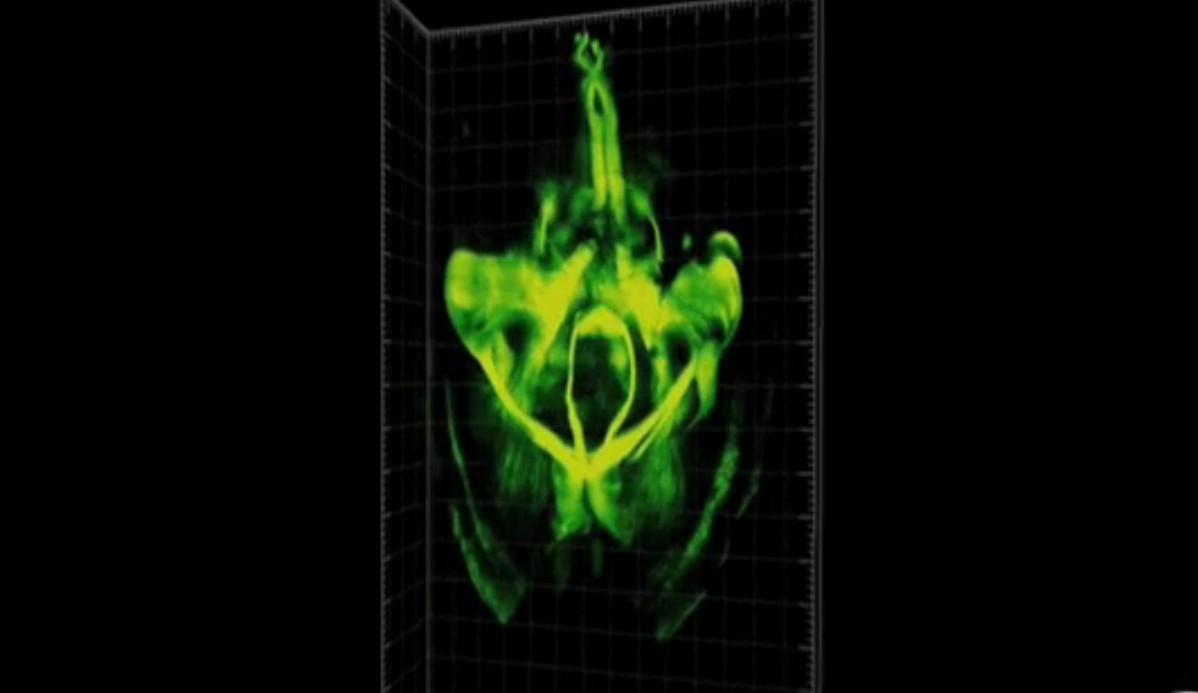 Trasparente e in 3D, il cervello visto con Clarity (VIDEO)