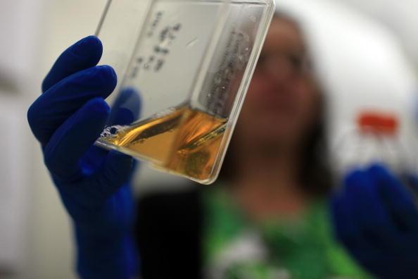Aids, curati due pazienti con le cellule staminali