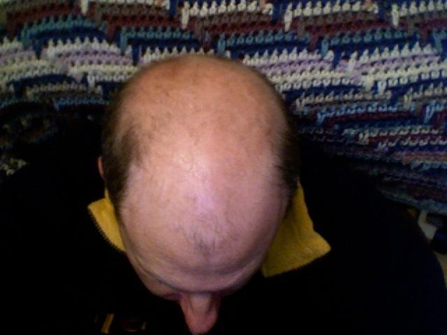 Cura contro la calvizie, capelli clonati sulla schiena dei topi