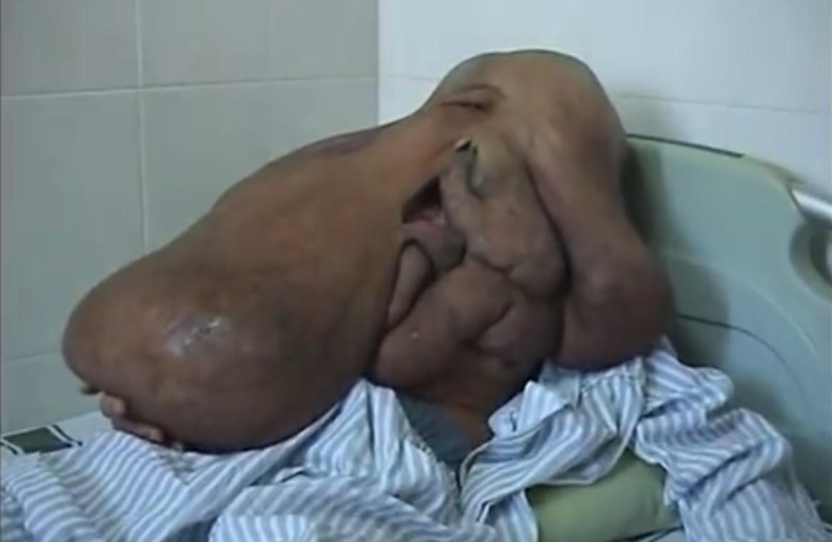 Elephant man cinese sottoposto a intervento per rimuovere tumori