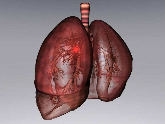 Tumore al polmone, un nuovo test lo rivela con due anni d'anticipo