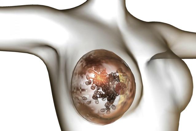 La terapia genica sarà la nuova arma contro i tumori