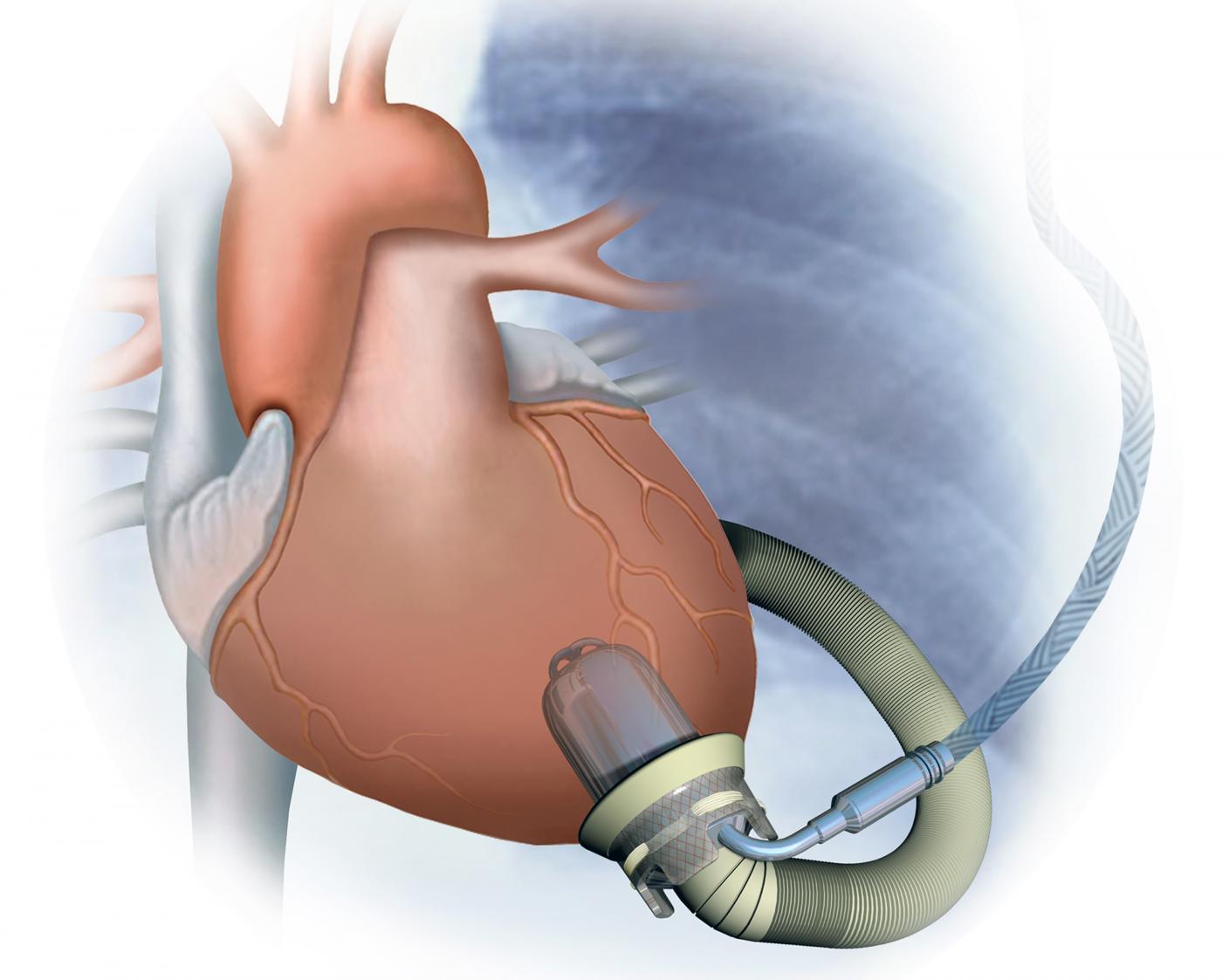 Il cuore artificiale che si controlla da internet