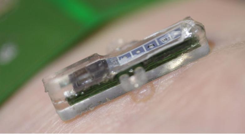 Diagnosi mediche in tempo reale, grazie ad un chip sottocutaneo [VIDEO]