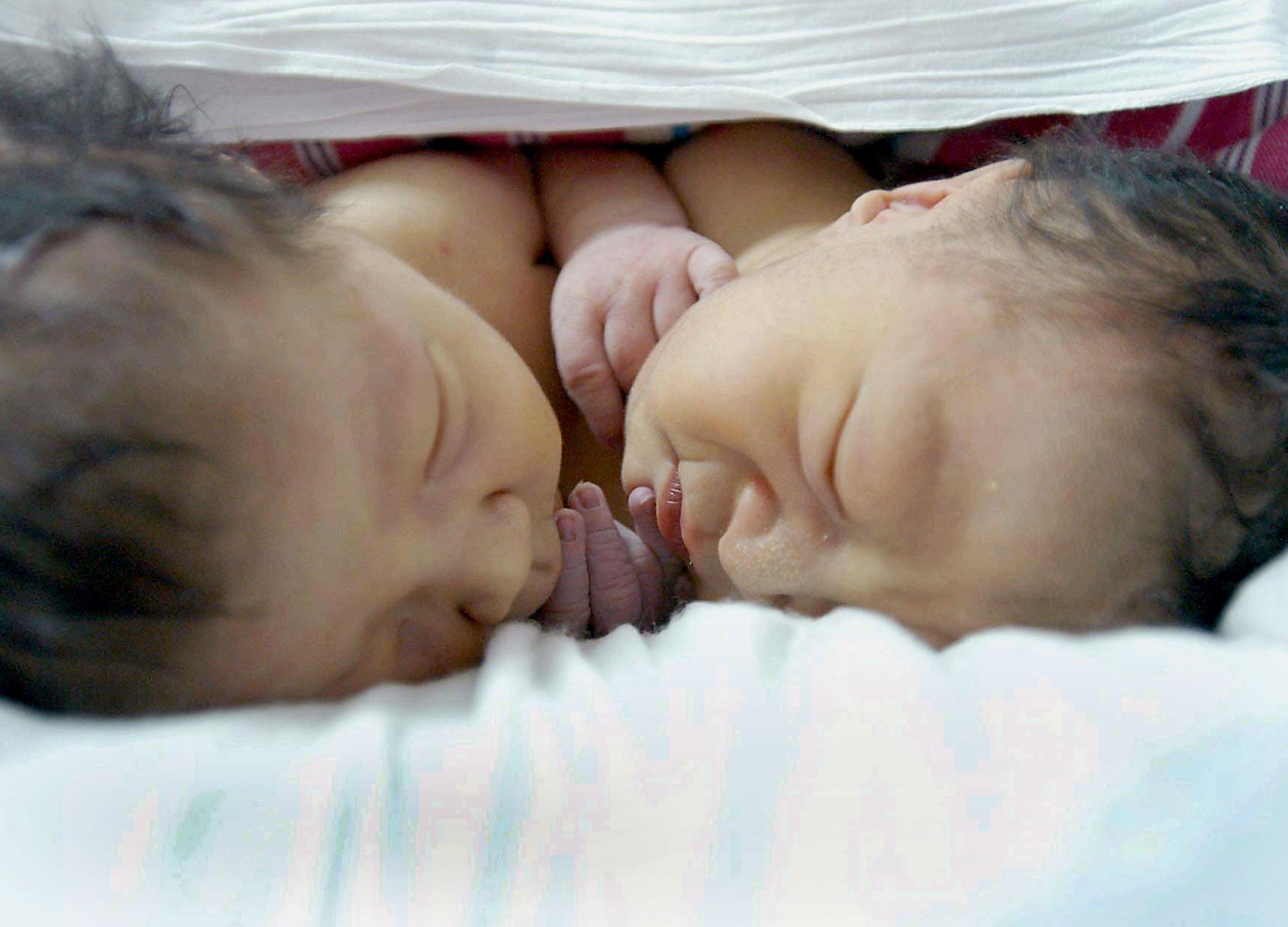 """""""Due anime con un solo cuore"""": le gemelle siamesi nate con un solo corpo"""