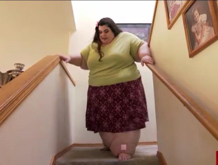 """""""Sono un mostro"""": pesa 300 chili e vuole ritornare a vivere con il bypass gastrico"""