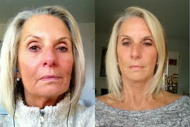 A 63 anni spende 19mila euro in chirurgia plastica per avere il selfie perfetto