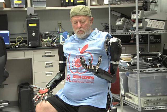Dopo 40 anni un doppio amputato ha controllato due braccia robotiche con la mente